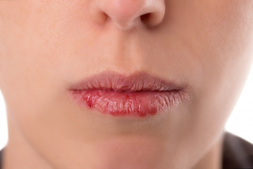Closeup womans face with brittle and dry lips